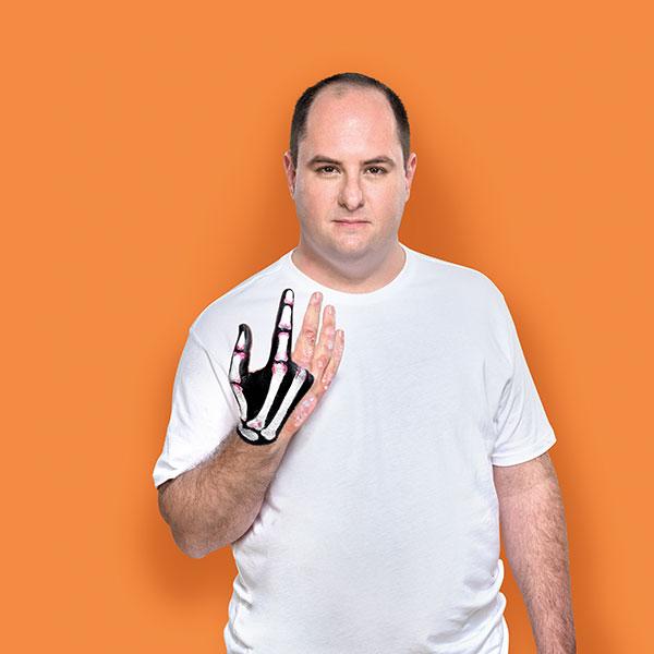 man hand artritis psoriatica