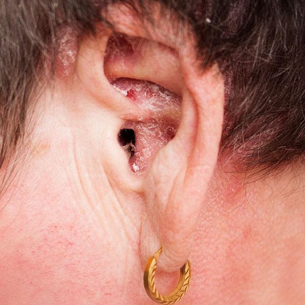 Psoriasis inversa in oor